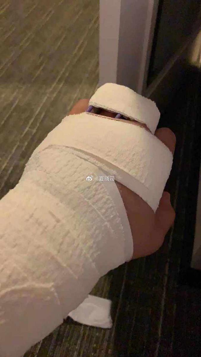 贾诚手臂受伤,康复期预计需两个月