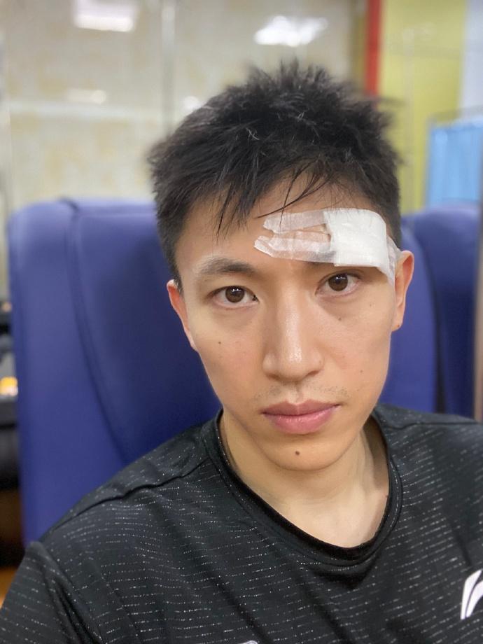 刘晓宇晒缝针后照片:缝了几针,不耽误事