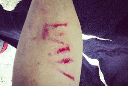 阿尔维斯曝光腿部受伤照片