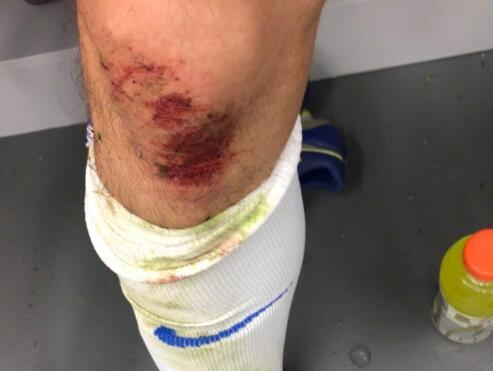 崔鹏晒膝盖受伤照片:勤勤奋奋,撸起袖子加油干