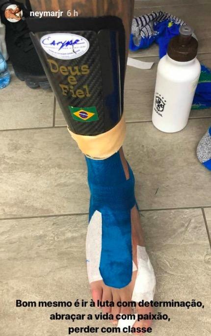 内马尔热身赛后晒伤脚,纱布绷带层层包裹