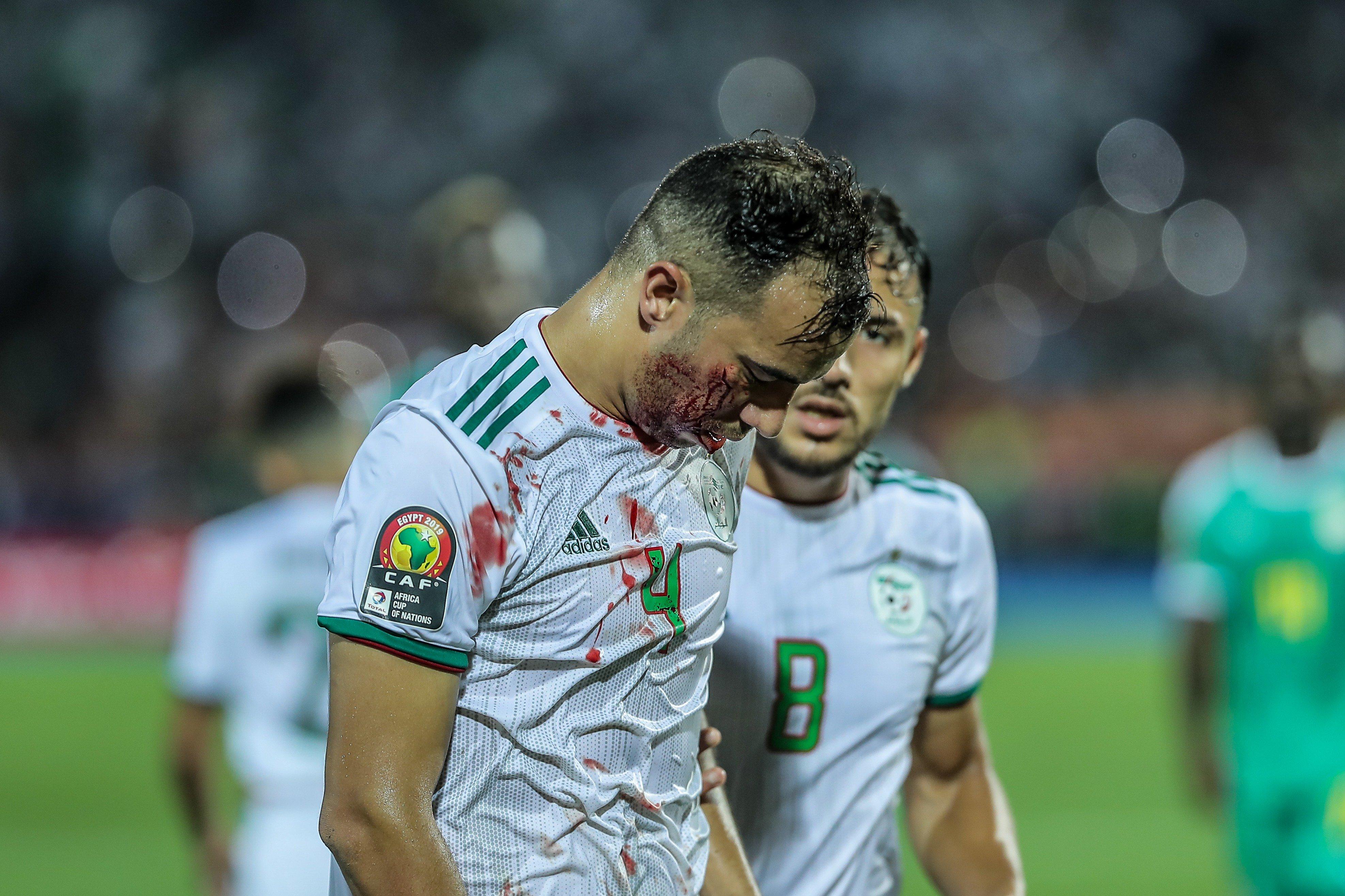 硬汉!阿尔及利亚后卫被马内顶破相后带伤完赛并夺冠