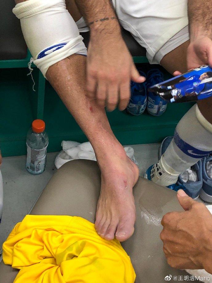 埃德尔护腿板被踢穿淤血严重,伤情需进一步检查