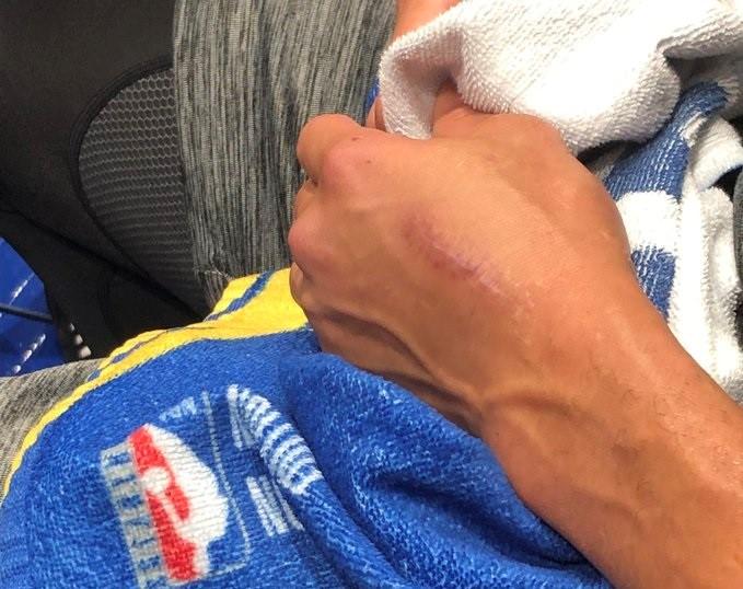 期待满血归来!勇士记者晒库里训练后左手手术伤疤照