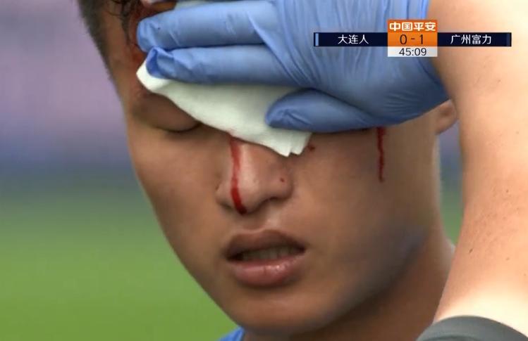 GIF:硬碰硬!林良铭与弋腾接触后眉骨破裂无法坚持
